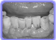krankes Zahnfleisch